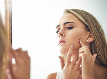 Struggling with Acne??? Heres some useful information for you…