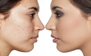 ACNE, you are not alone