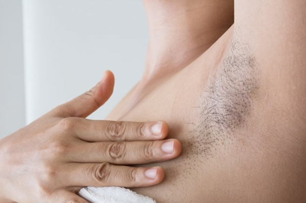 hair removal in cape town